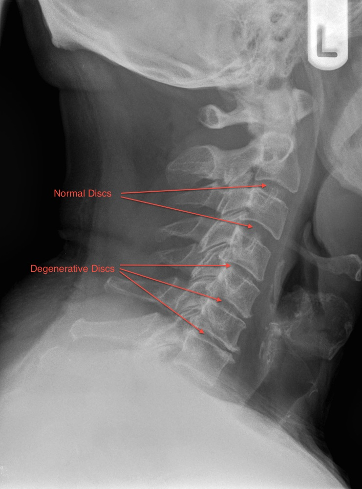 Spine Dragon - Spinal Conditions: Neck Pain and Whiplash